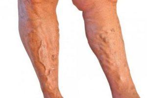 Consejos para evitar la trombosis venosa
