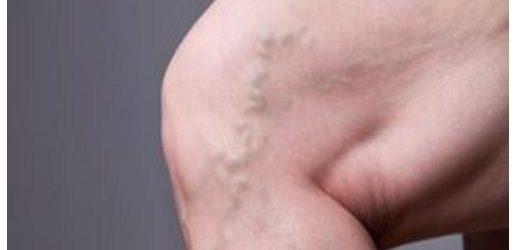 Peligros de la trombosis venosa
